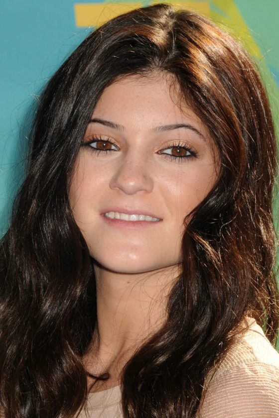 Kylie Jenner Before Plastic Surgery And After Pictures In 2010 and 2011 Age Teenage 13 14